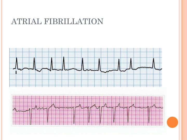 a study of atrial fibrillation in united states Purpose: to systematically review the evidence on screening for and stroke prevention treatment of nonvalvular atrial fibrillation (af) in adults age 65 years or older for populations and settings relevant to primary care in the united states data sources: pubmed/medline, the cochrane library, and trial.