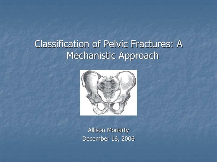 Classification of Pelvic Fractures: A Mechanistic Approach