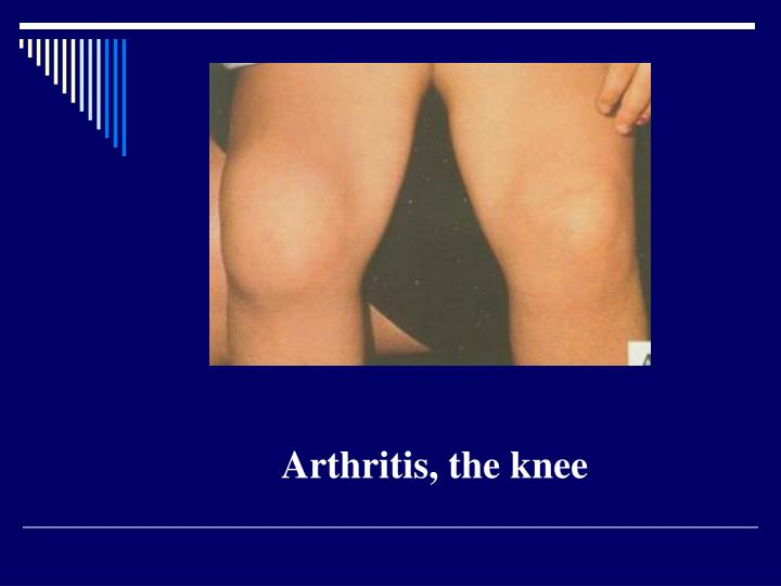 Arthritis, the knee