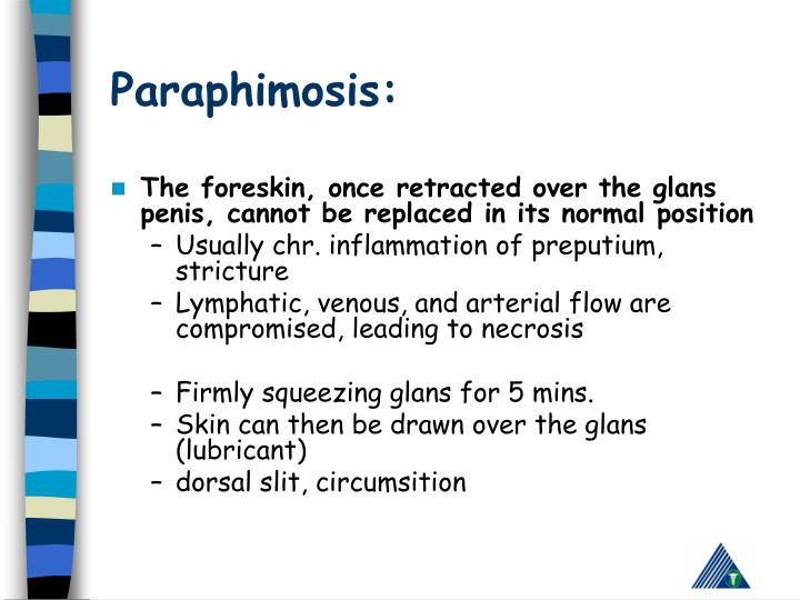 Paraphimosis: