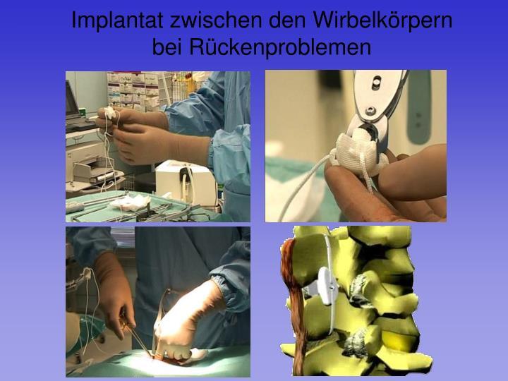 Implantat zwischen den Wirbelkörpern bei Rückenproblemen