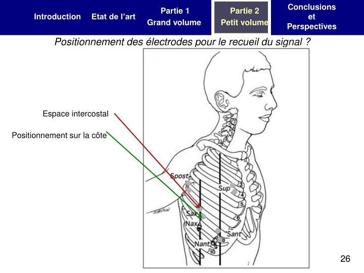 Positionnement des électrodes pour le recueil du signal ?