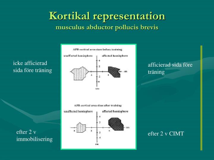 Kortikal representation