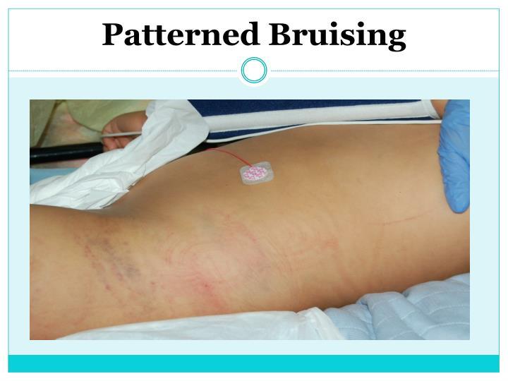 Patterned Bruising