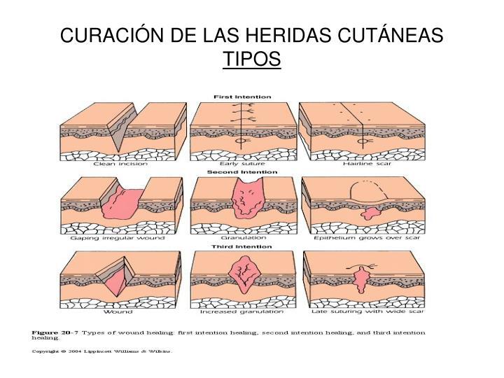CURACIÓN DE LAS HERIDAS CUTÁNEAS