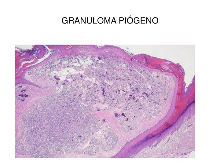GRANULOMA PIÓGENO