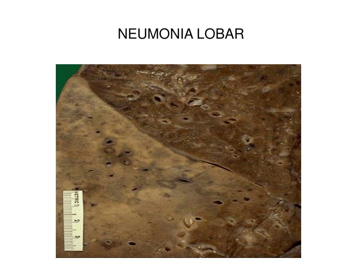 NEUMONIA LOBAR