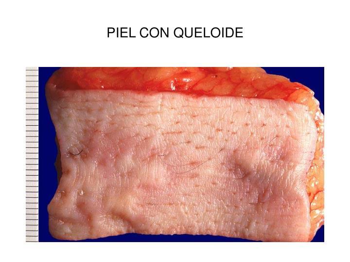 PIEL CON QUELOIDE