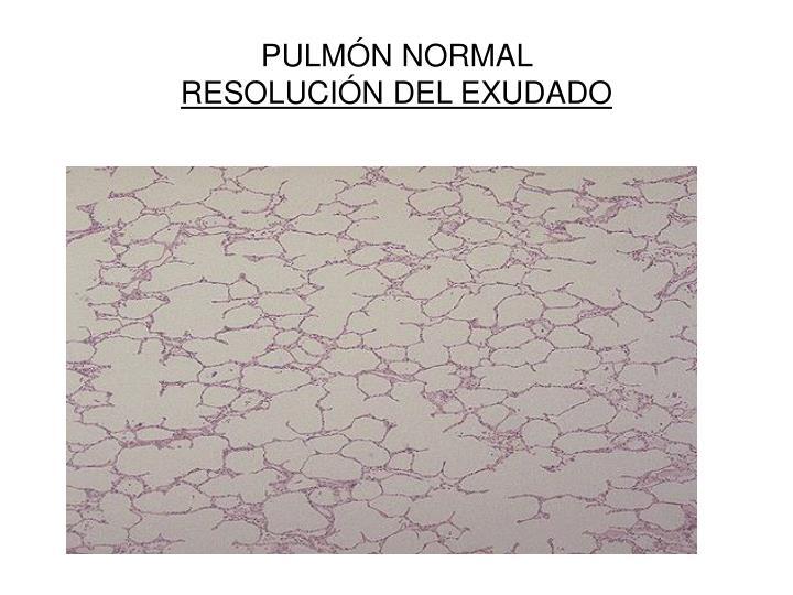 PULMÓN NORMAL
