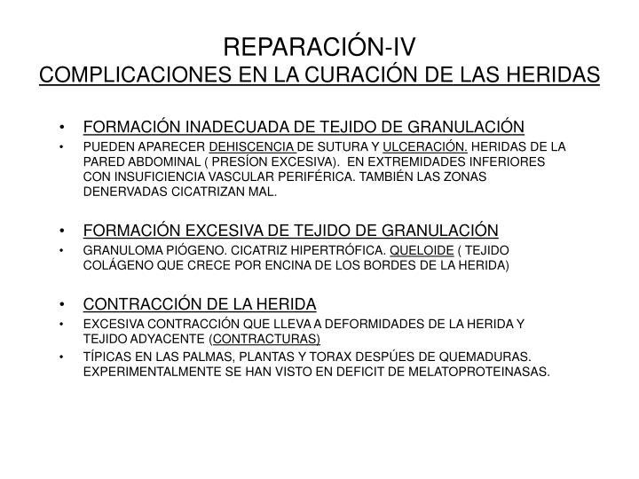 REPARACIÓN-IV