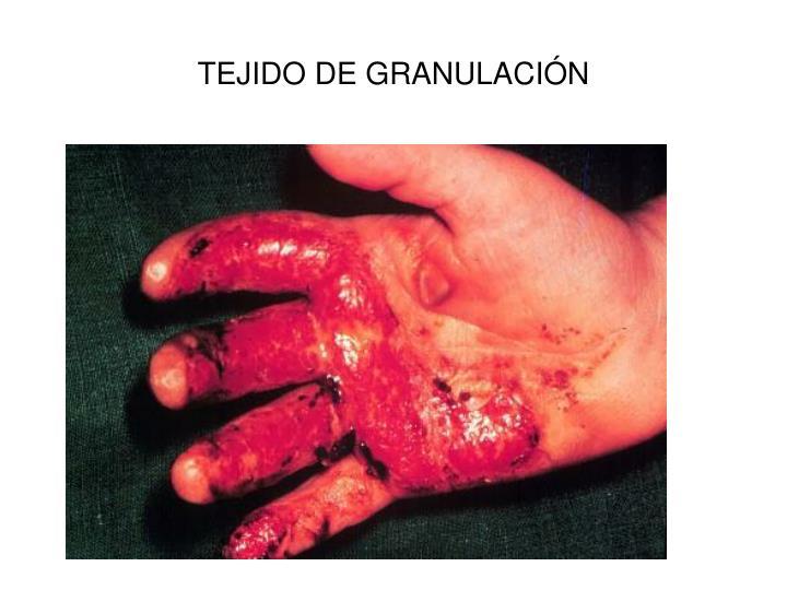TEJIDO DE GRANULACIÓN