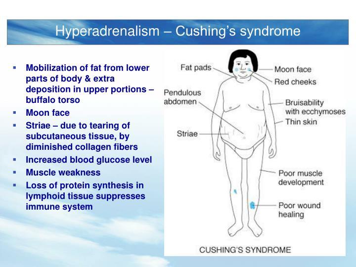 Hyperadrenalism – Cushing's syndrome