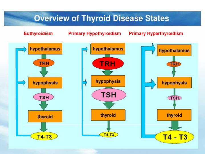 Overview of Thyroid Disease States