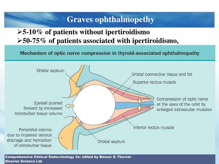 Graves ophthalmopethy