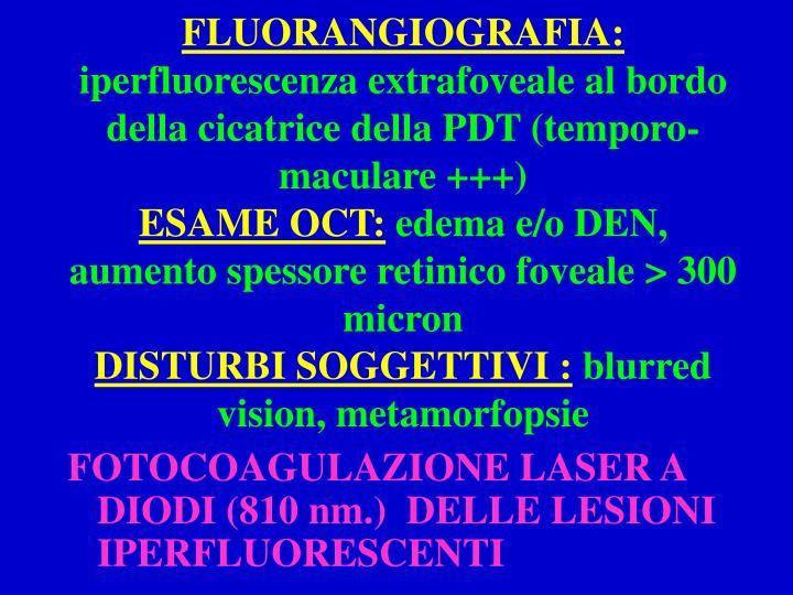 FLUORANGIOGRAFIA: