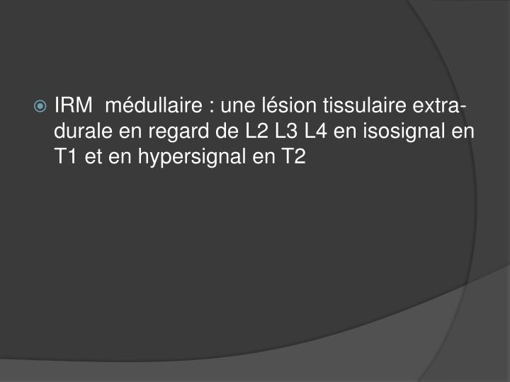 IRM  médullaire : une lésion tissulaire extra-durale en regard de L2 L3 L4 en isosignal en T1 et en hypersignal en T2