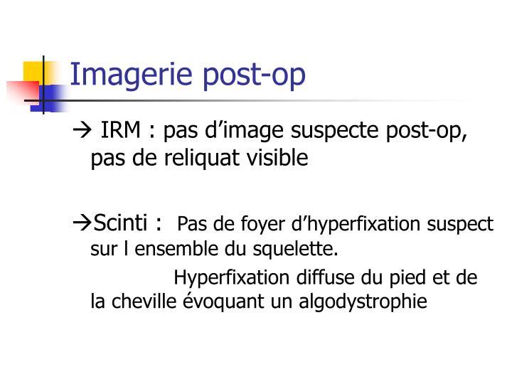 Imagerie post-op