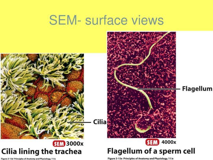 SEM- surface views