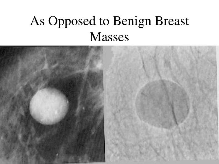 As Opposed to Benign Breast Masses