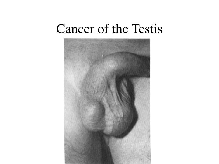 Cancer of the Testis