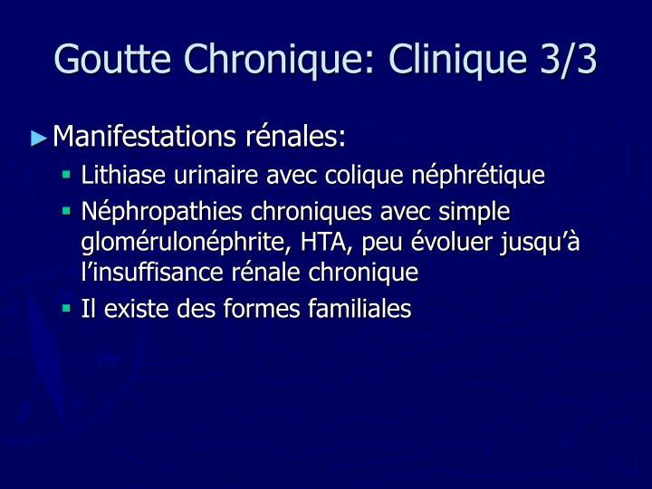 Goutte Chronique: Clinique 3/3