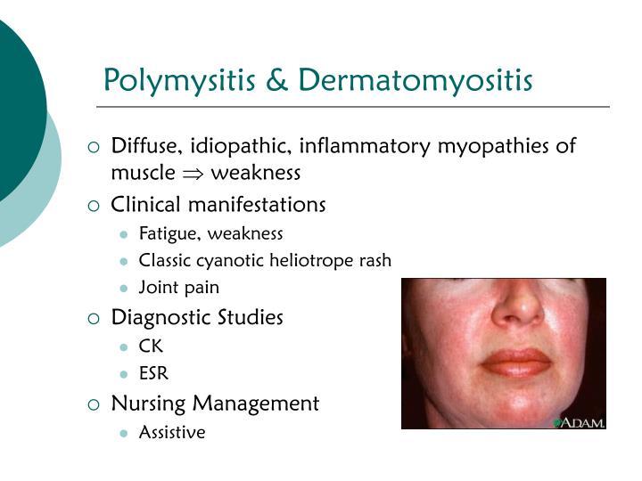 Polymysitis & Dermatomyositis