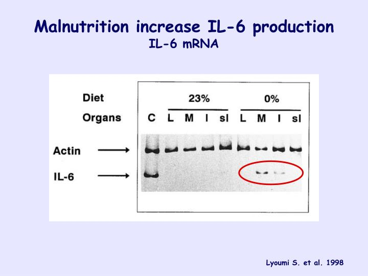 Malnutrition increase IL-6 production