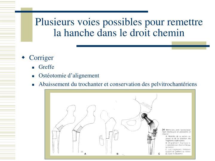 Plusieurs voies possibles pour remettre la hanche dans le droit chemin
