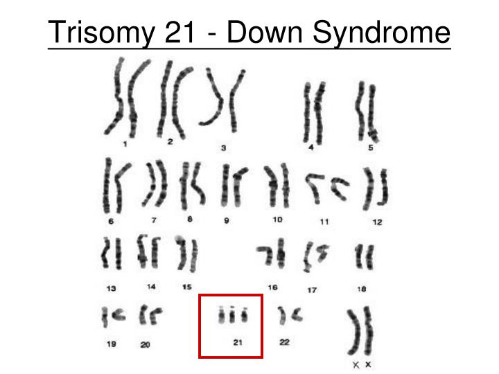 Trisomy 21 - Down Syndrome