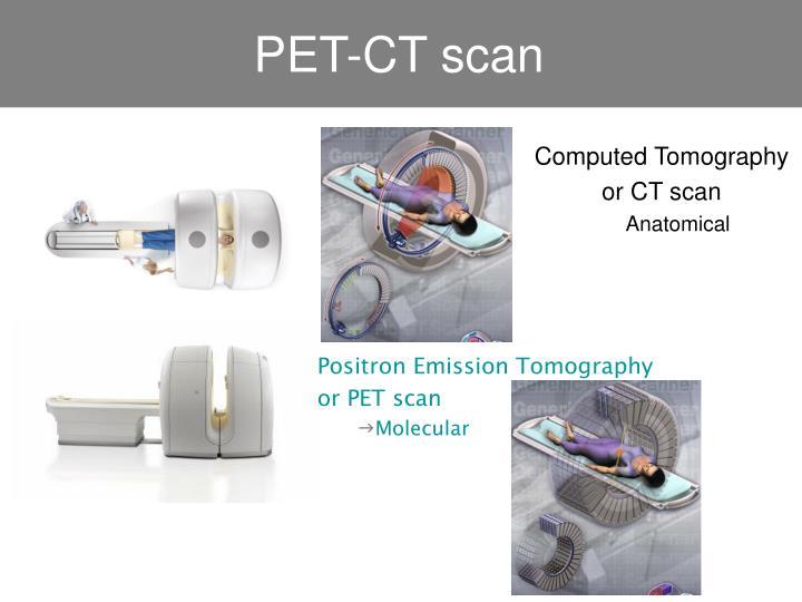 PET-CT scan