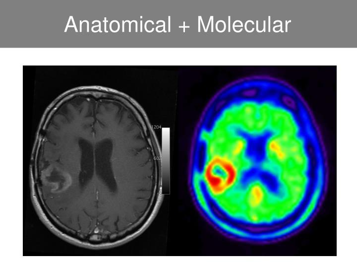 Anatomical + Molecular