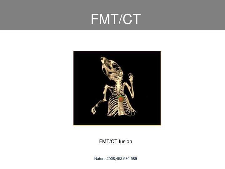 FMT/CT