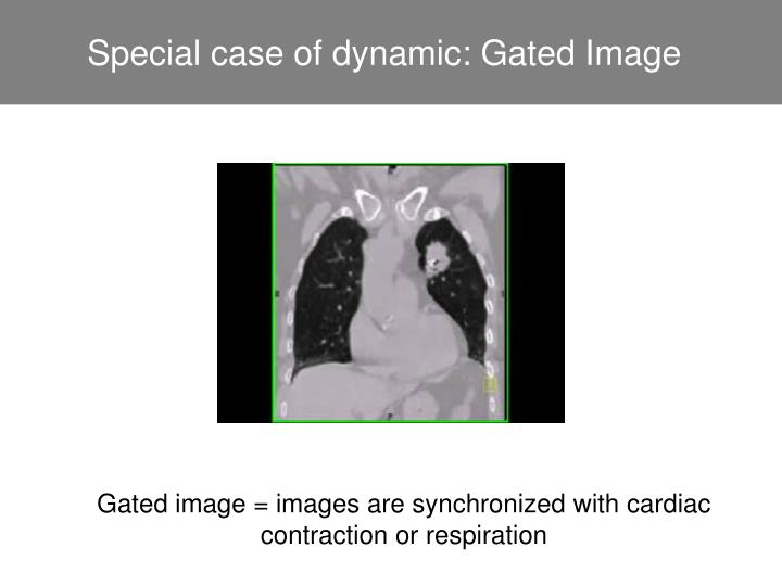 Special case of dynamic: Gated Image