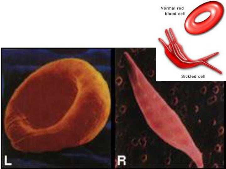 Difference between normal cells & sickle cells
