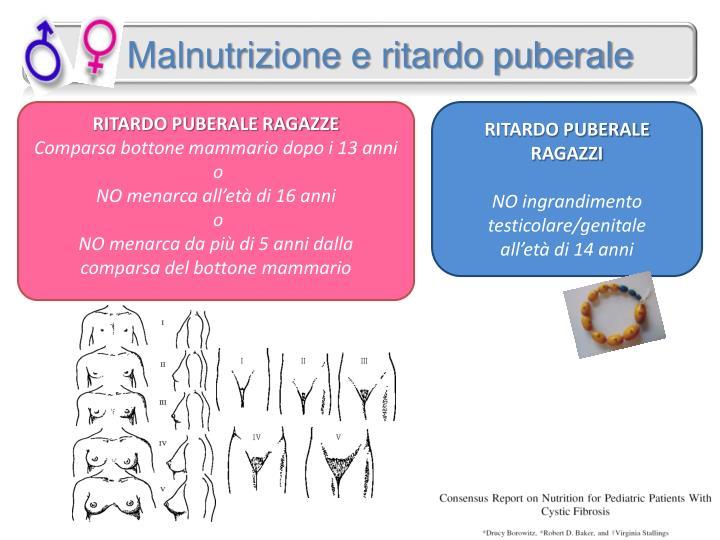 Malnutrizione e ritardo puberale