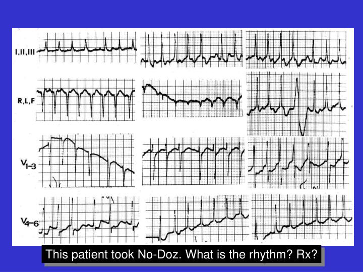 This patient took No-Doz. What is the rhythm? Rx?