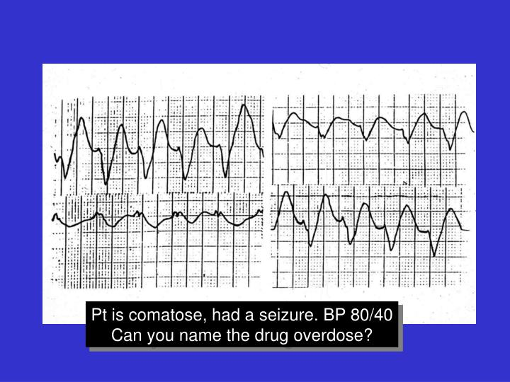 Pt is comatose, had a seizure. BP 80/40