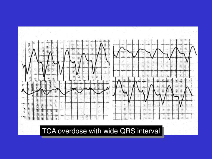 TCA overdose with wide QRS interval