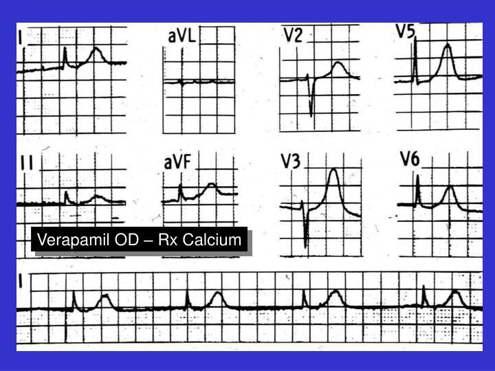 Verapamil OD – Rx Calcium