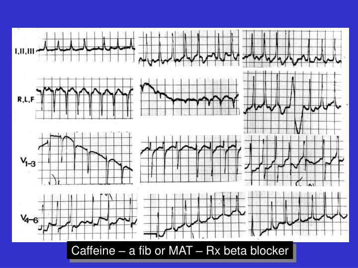 Caffeine – a fib or MAT – Rx beta blocker