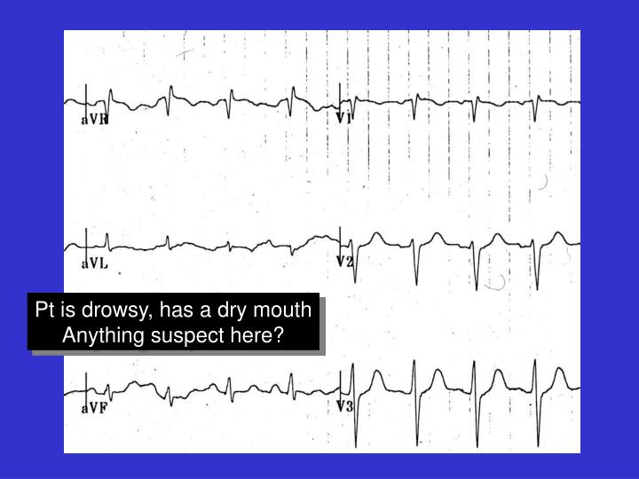 Pt is drowsy, has a dry mouth