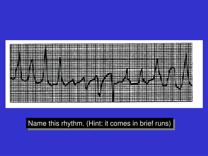 Name this rhythm. (Hint: it comes in brief runs)