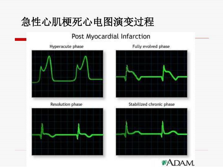 急性心肌梗死心电图演变过程