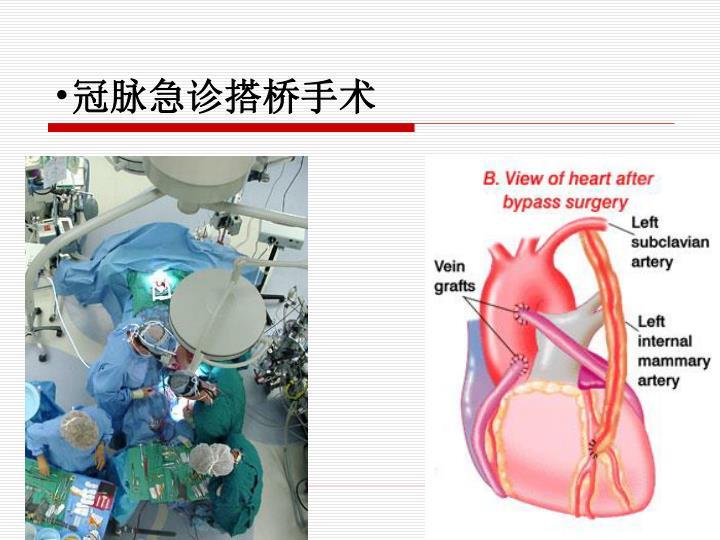 冠脉急诊搭桥手术