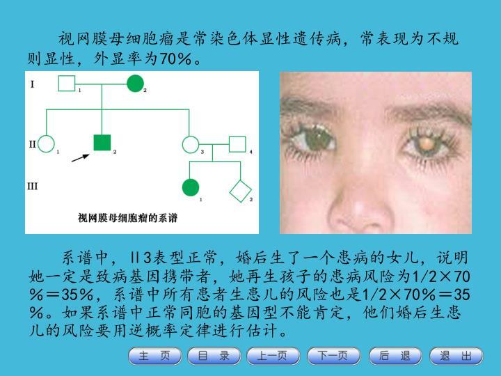 视网膜母细胞瘤是常染色体显性遗传病,常表现为不规则显性,外显率为