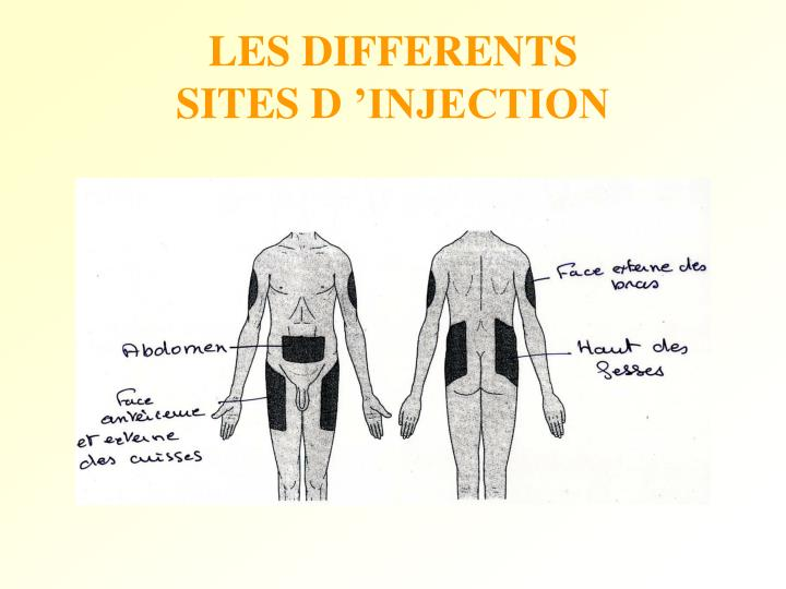 LES DIFFERENTS SITES D 'INJECTION