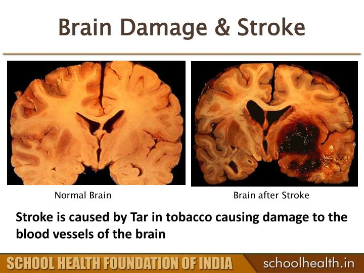 Brain Damage & Stroke