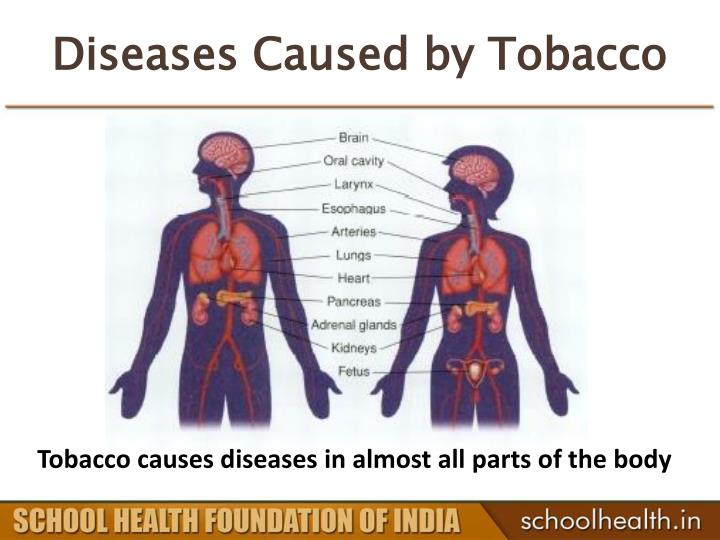 Diseases Caused by Tobacco