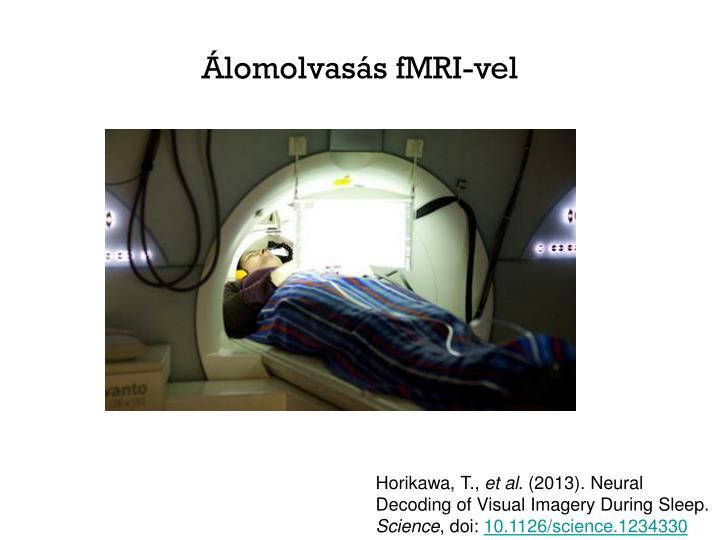 Álomolvasás fMRI-vel