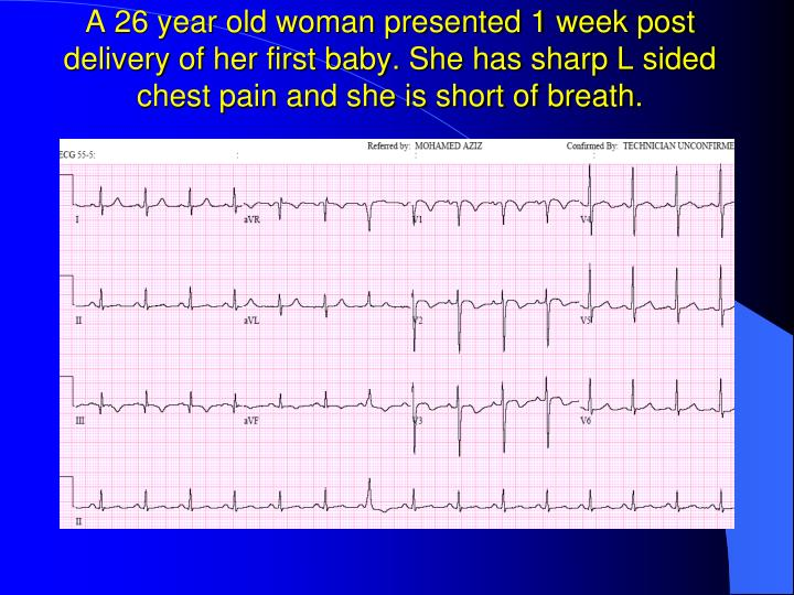A 26 year old woman presented 1 week post delivery of her first baby. She has sharp L sided chest pain and she is short of breath.